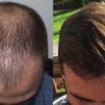 Как делают пересадку волос?