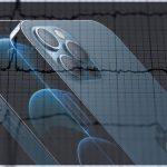 iPhone 12 может нарушить работу кардиостимуляторов